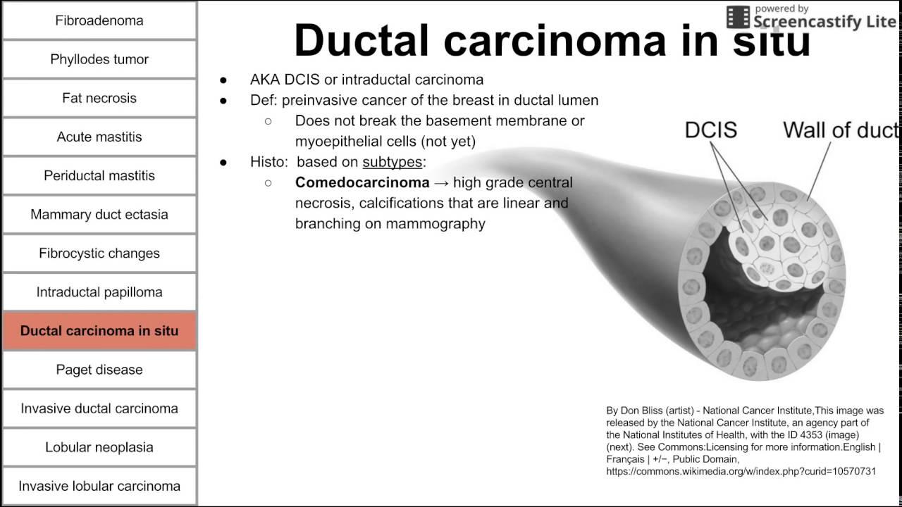Intraductal papilloma breast histopathology Intraductal papilloma dna