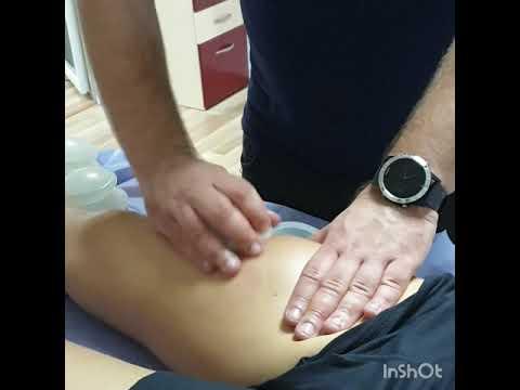 tratamentul complex al condilomului
