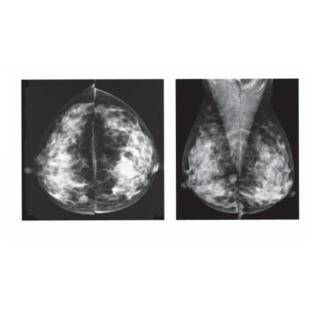 papilloma on x ray)