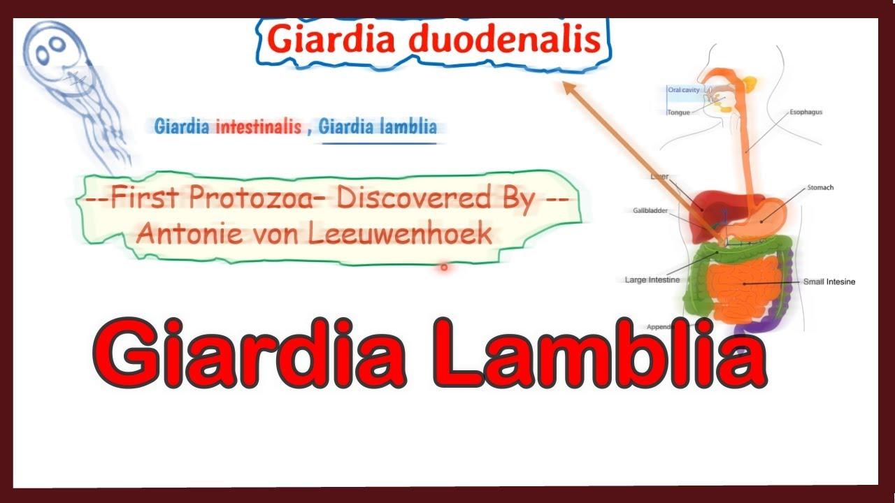 Tratamentul paraziților cu Giardia