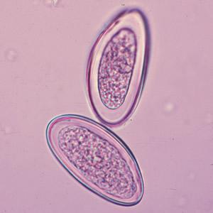 enterobius vermicularis cacing kremi) de la ce fac copii limbrici