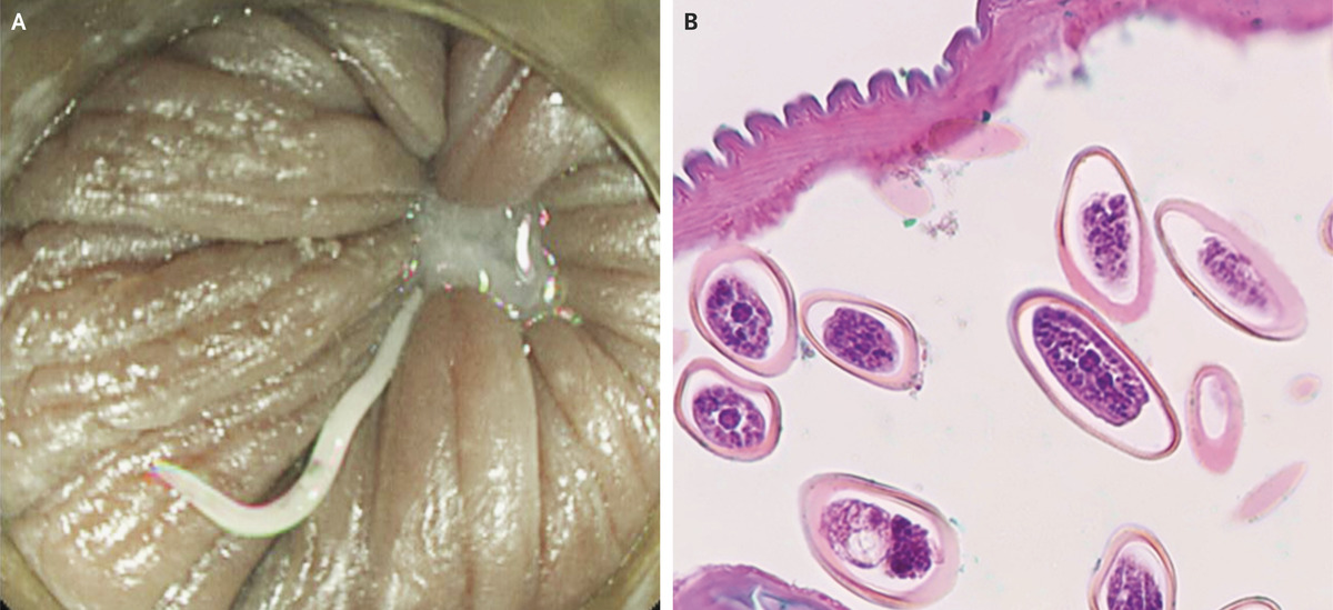 (PINWORMS) infection and enuresis - Zooparaz.net