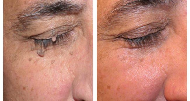 Preturi tratamente dermatologice | Centrul Medical Dr. Ianosi