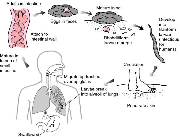 define helminth medical term margele de iepuras