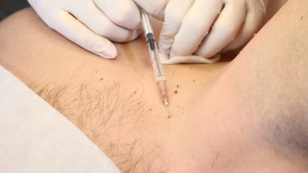 papilloma removal procedure