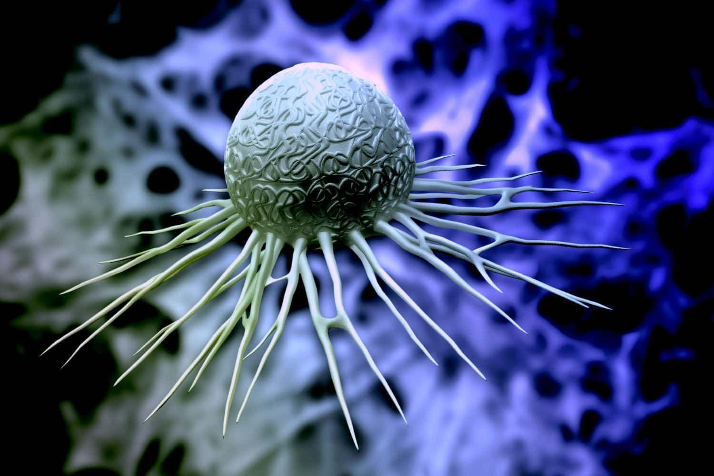 Endometrial cancer pembrolizumab - Endometrial cancer keytruda