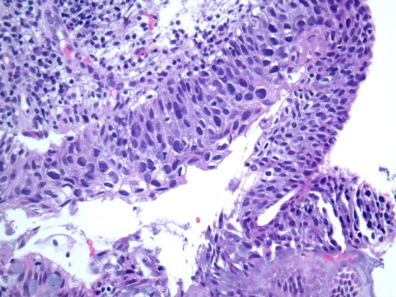 histopathology papilloma virus)