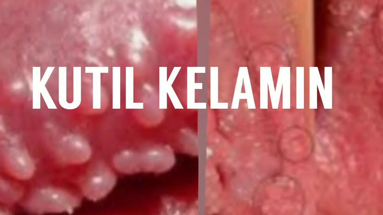 Hpv high risk positiv kinderwunsch, Helmintii provoacă boală la om