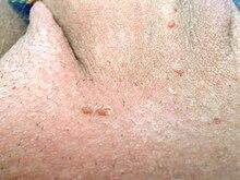 types of helminth diseases pastile vermisole de la viermi