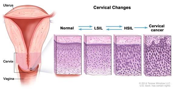 hpv intraepithelial lesion