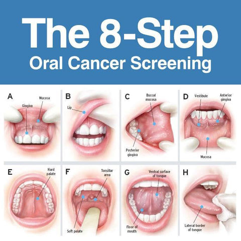 hpv oropharyngeal cancer)