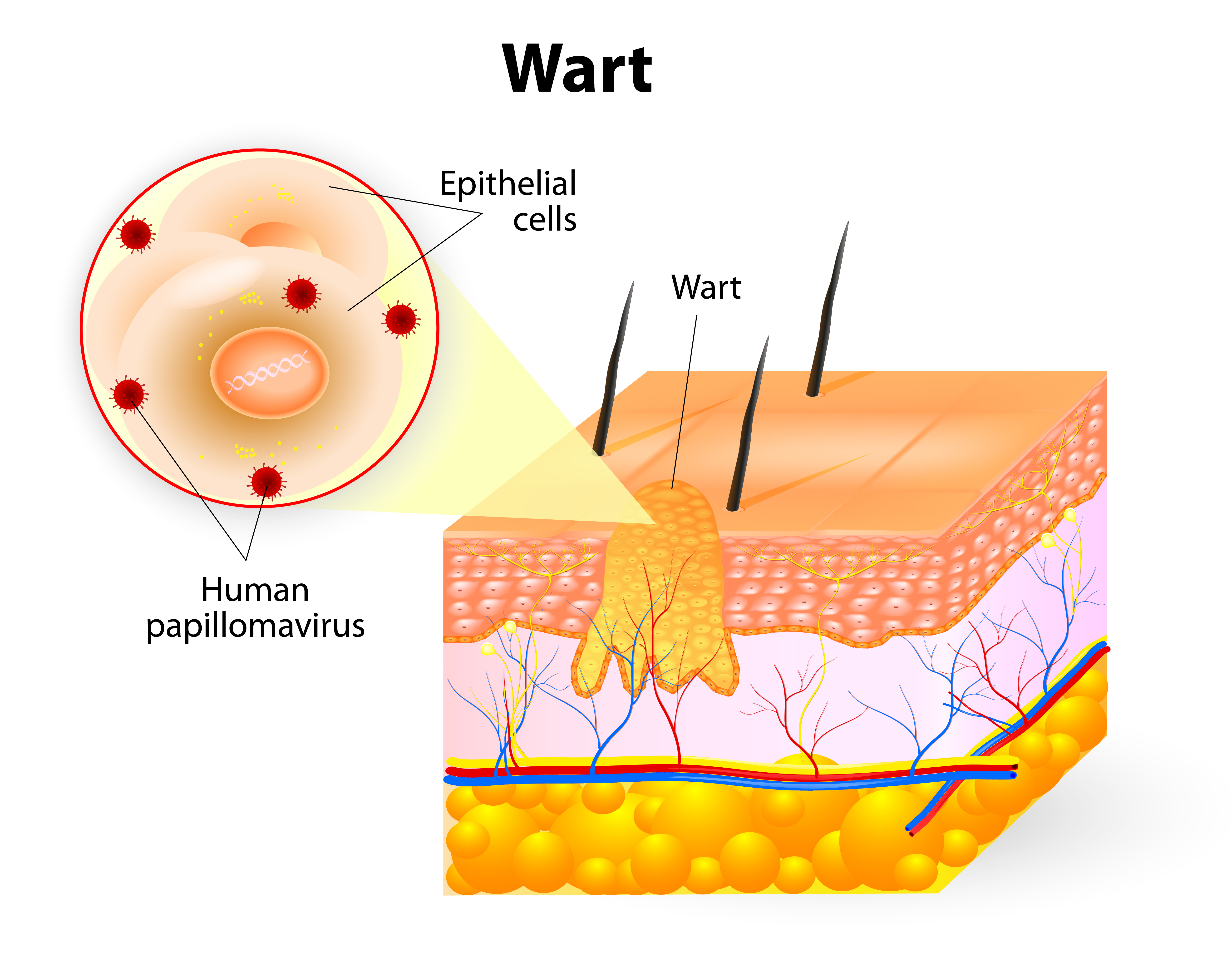 Warts on hands are caused by Hpv regular warts