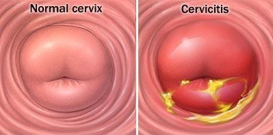 hpv virus na grlicu materice