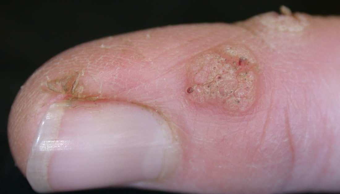 hpv warts in hands)