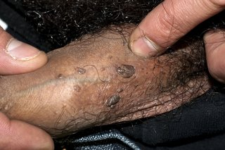 hpv warts itch
