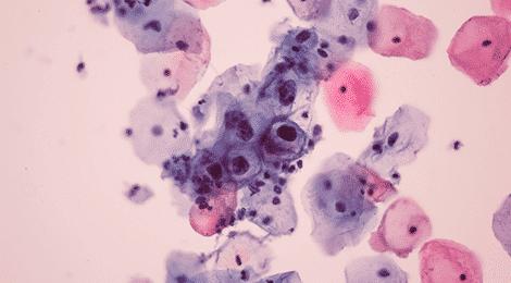 Define human papillomavirus hpv)