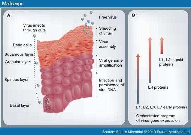 human papillomavirus hpv medscape)