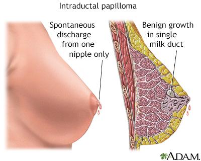 intraductal papilloma prognosis)