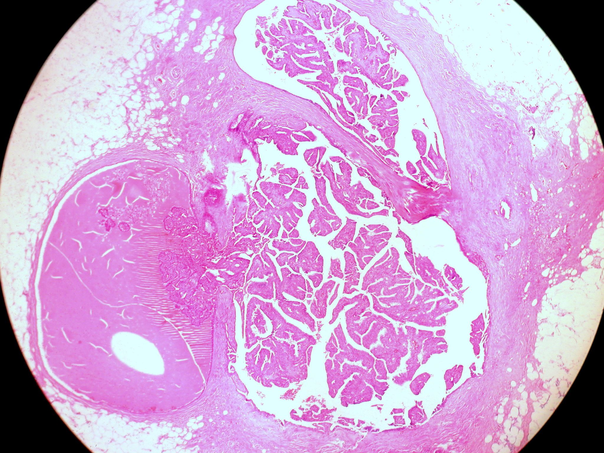 intraductal papillomas symptoms