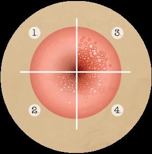 lesion bouche papillomavirus