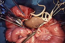 liver helminth infection)