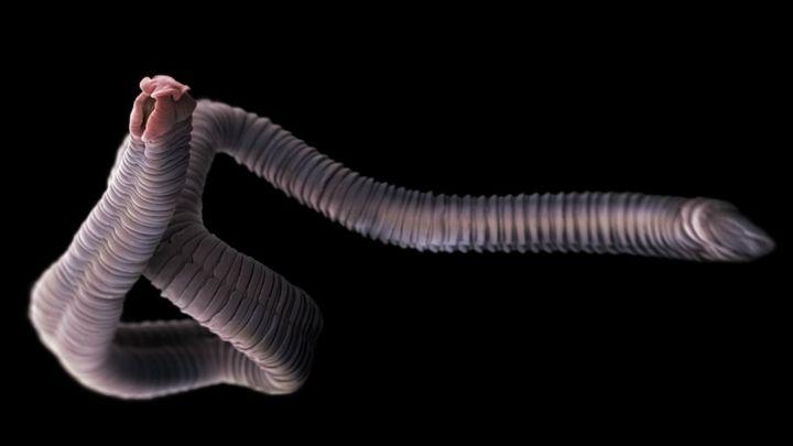 Dientamoeba fragilis - Wikipedia. Oxiuros causa diarrea, Oxiuros y diarrea