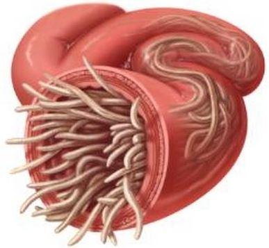 ce unguente pentru tratarea condiloamelor hpv in colon