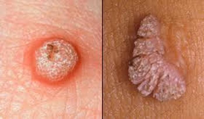 mod de infectare a verucilor genitale
