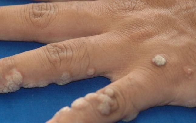 hpv lesion description eliminați papilomul din esofag