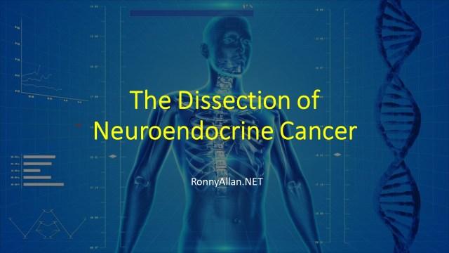 neuroendocrine cancer news)