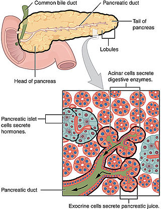 pancreatic cancer definition