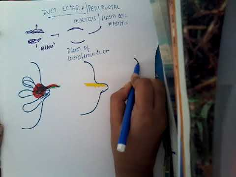 papilloma al seno c3
