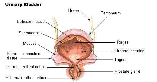 papilloma vescicale benigno o maligno)