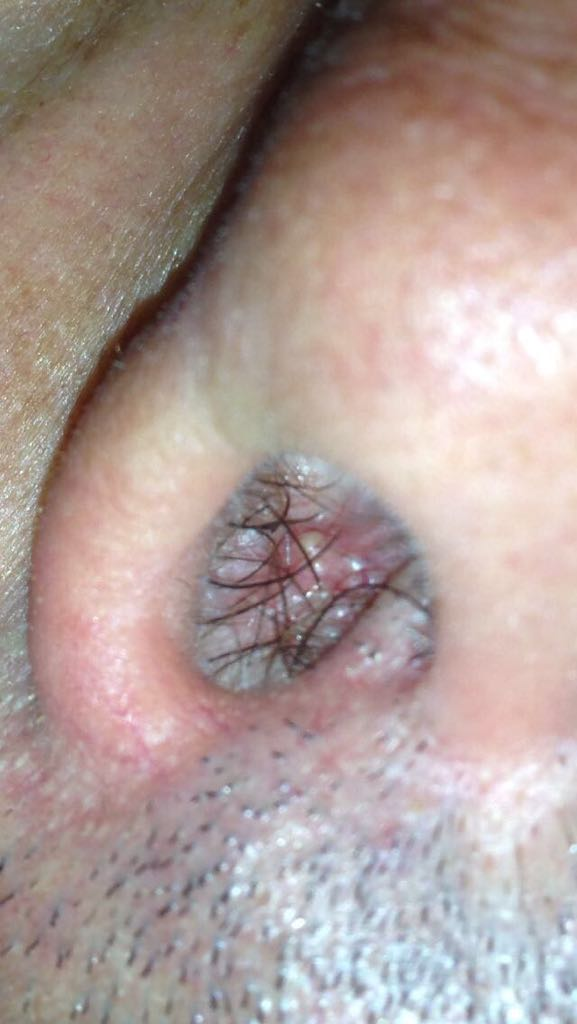 papilloma virus trasmissione saliva)
