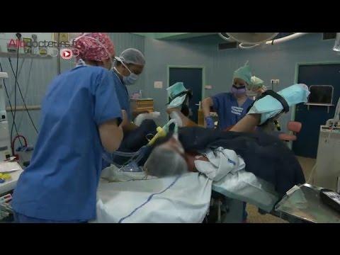 papillomavirus apres operation