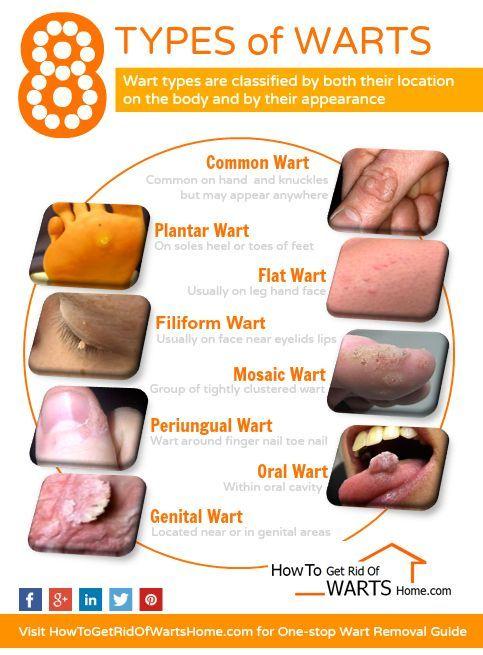 papillomavirus wart removal papillomas are also known as