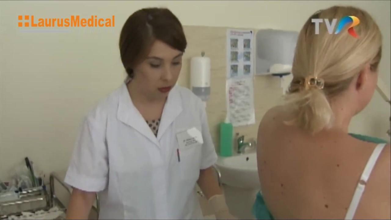 papiloame pe fața și gâtul cauzei