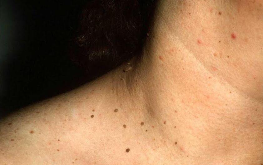 Papiloma fibroepitelial benigno
