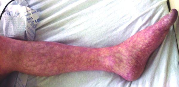 papiloma gluteus adalah diagnosis of bladder papilloma