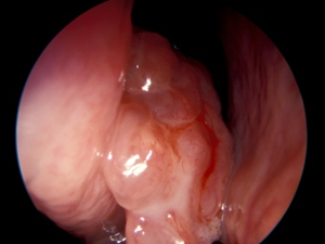 papiloma nasal benigno