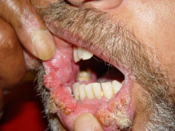 papilomavirus uman pe față