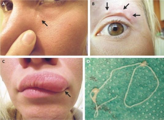 Fascinant Fapte Gross Botfly