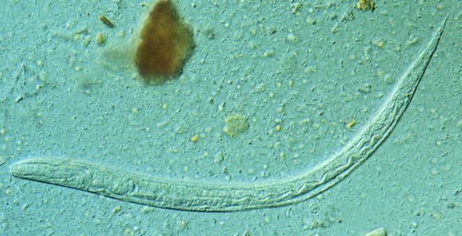 paraziti de mucus remedii parazite pentru acnee