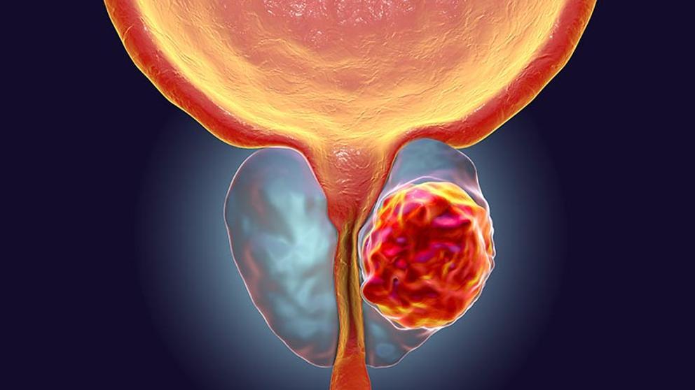 que es cancer de prostata sintomas)