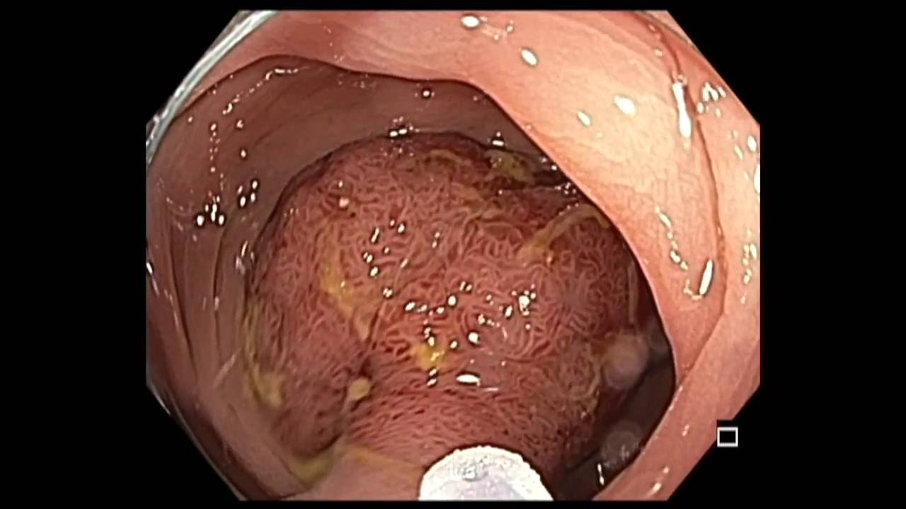 rectosigmoid cancer resection)