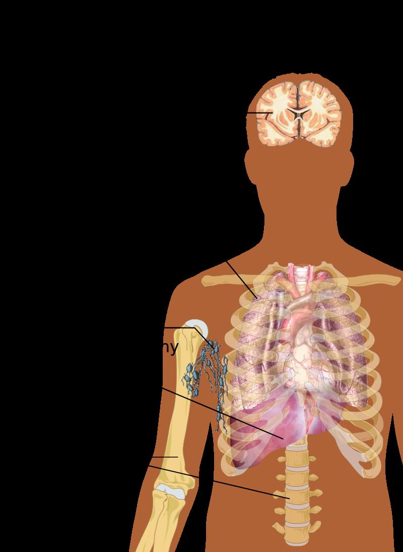 cancer tissue - Traducere în română - exemple în engleză   Reverso Context