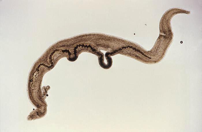 schistosomiasis florida