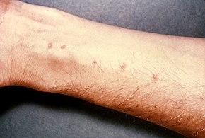 schistosomiasis nile