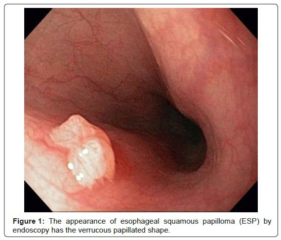 squamous papilloma polyp