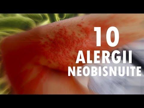 tratament alergic parazitar)